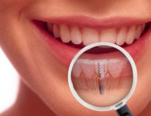 Dental Implants in Vasant Kunj