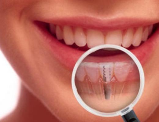 Dental Implants in Vasant Kunj
