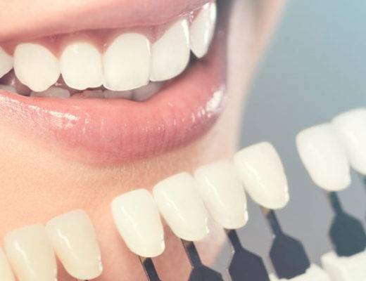 Best Cosmetic Dentist in Vasant Kunj