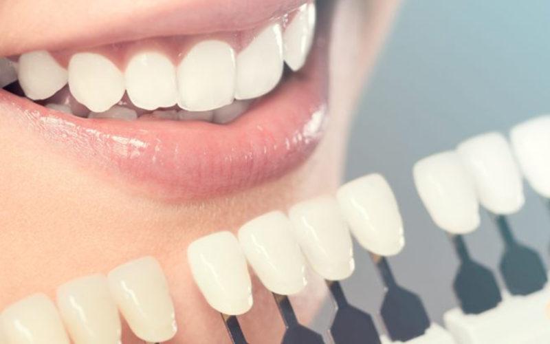 Best Cosmetic Dentist in Vasant Kunj