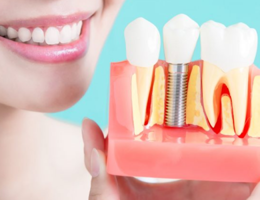 Best Dental Implants in Vasant Kunj