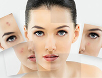 Best Skin Treatment in South Delhi