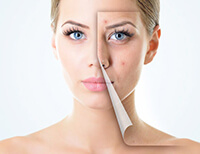 Skin Treatment in South Delhi