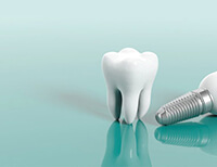 Matrix Dental & Skin Lounge for Your Dental Implants