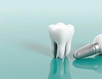 Matrix Dental & Skin Lounge for Your Dental Implants