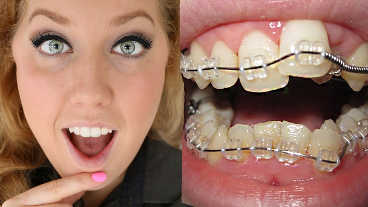 Dentist In Vasant Vihar For Braces Matrix Dental And