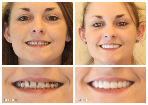 Smile Design and Smile Makeover in South Delhi