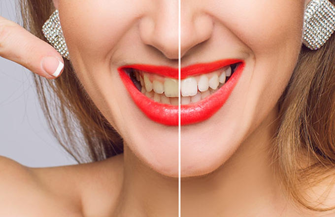Teeth Whitening Services in Vasant Kunj