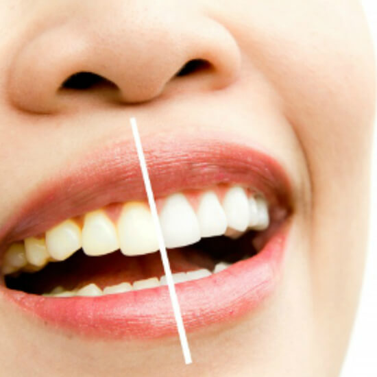 Teeth Whitening in Vasant Vihar