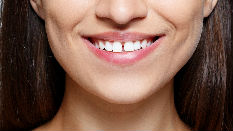 Tooth Gap Treatment in Vasant Vihar