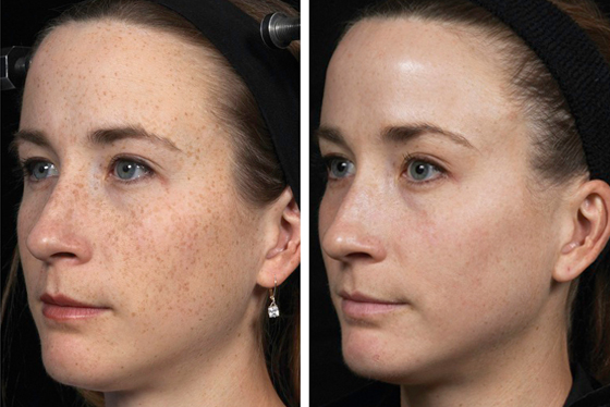 Pigmentation Management Services in Vasant Vihar