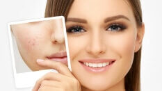 Acne Treatment in Vasant Vihar