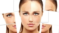 Pigmentation Management Service in Vasant Vihar